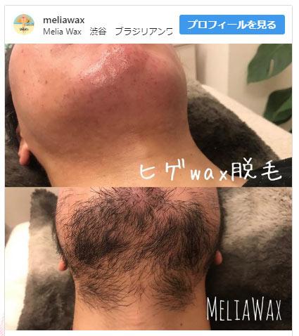 男性のヒゲ脱毛