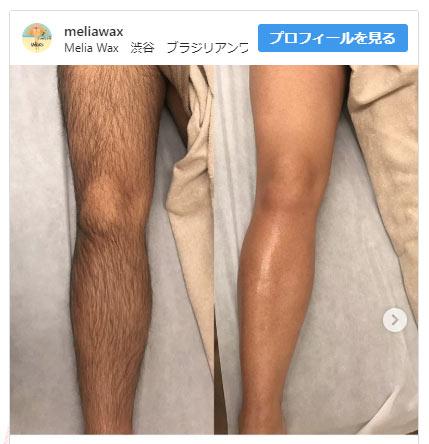 男性の足脱毛